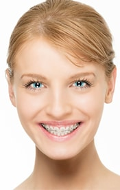 Braces treatment from an Orthodontists in Edmonton
