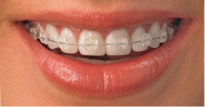 picture of clear braces