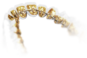 Example of lingual braces