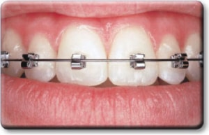 pic of self ligating braces