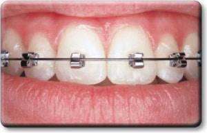 pic of self ligating braces