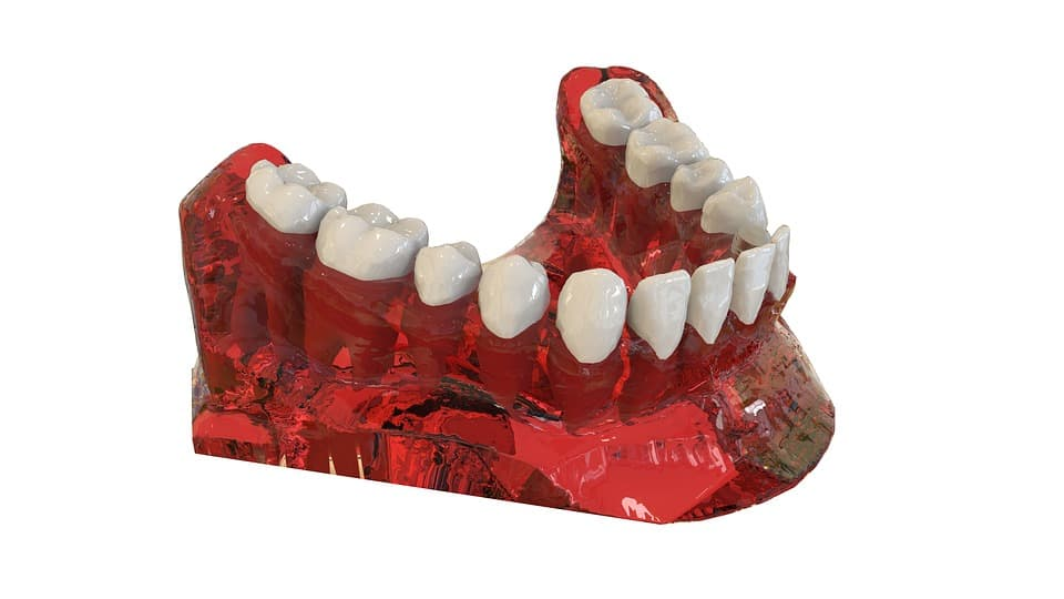 orthodontics-treatment